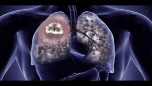 Epidemiology of Asbestos Cancer